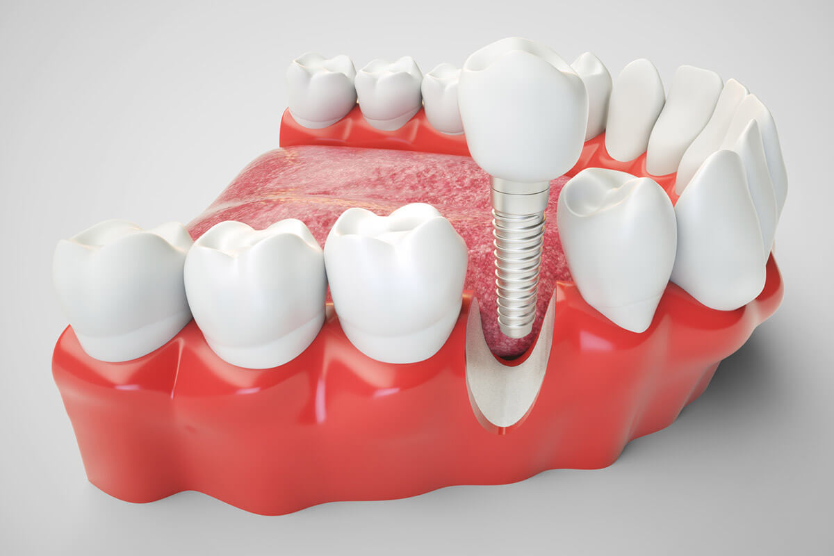 Implantologia<