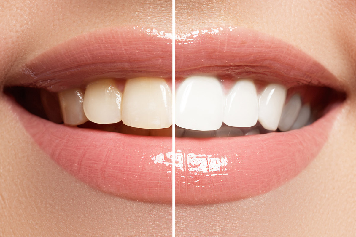 Wybielanie zębów<